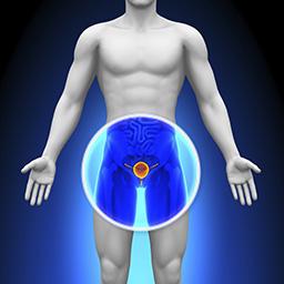 Prostatakrebs und Curcumin